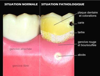 anatomie dent3