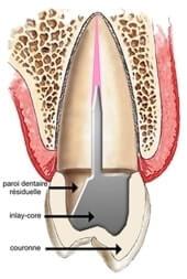 prothèse fixée
