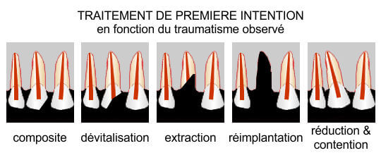 Traumatologie - traitement de 1ère intention